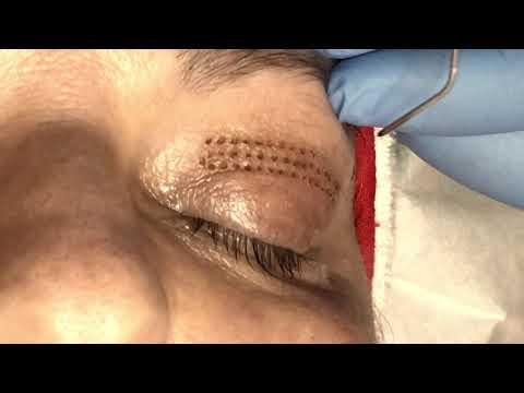 Tratament articular retona