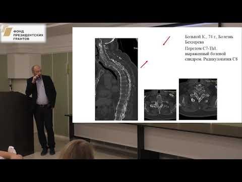 Басанкин И.В. -  Хирургическое лечение анкилозирующего спондилита