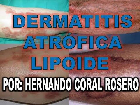 Las cremas de la psoriasis sobre la cabeza