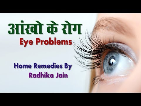 आँखों के रोग - Home Remedies for Eye Disease - Hindi by Radhika JainHealth Tips