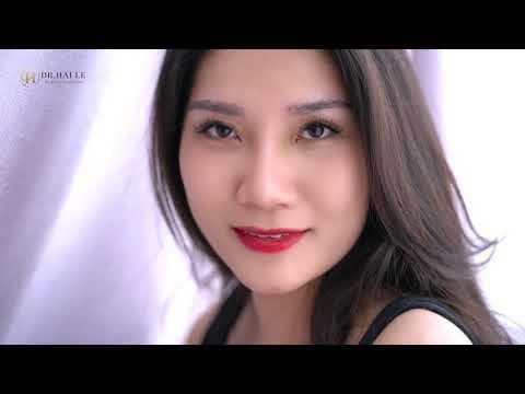 Bạn gái Hoài Thương chia sẻ cảm nhận sau 10 ngày nâng mũi tại Dr.Hải Lê