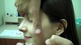 Dr. Jeffrey Epstein- Revision Rhinoplasty – 1 Week Post-Op
