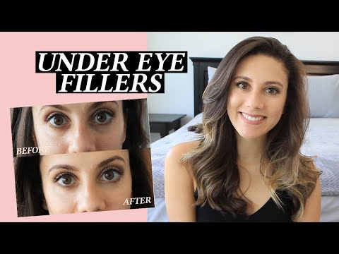 Under Eye Injections: My Facial Fillers Experience, Cost, Before And After