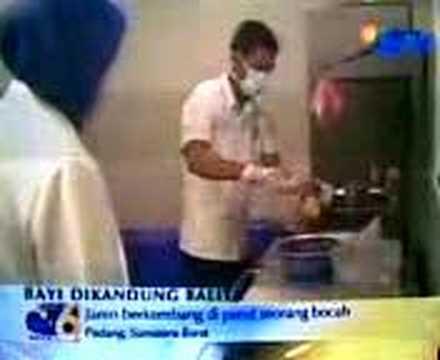 'Bayi' melahirkan bayi kembar di Sumatera Barat | Tafsiran ...