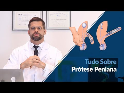 Massagem próstata procedimento