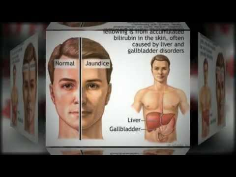 Video Cirrhosis Of The Liver Information