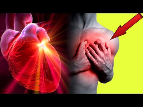Rvns diagnóstico de tipo hipertensiva lo que es