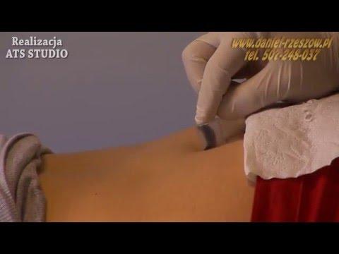 Gel de la varicoză pe bază de castane