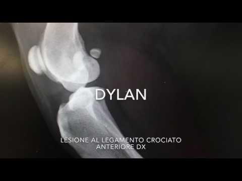 Articolazioni del ginocchio diagnostica ecografica