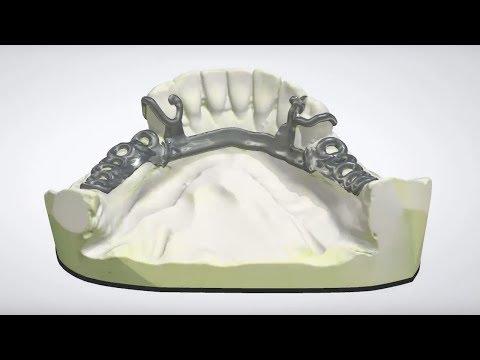 3Shape Dental System - RPD Design