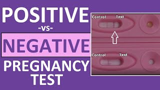 Pregnancy Test: Positive vs Negative Results
