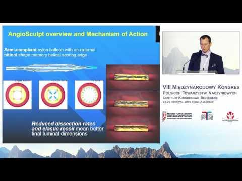 Endowaskularne udrażniane tętnic - aterektomia mechaniczna, laserowa
