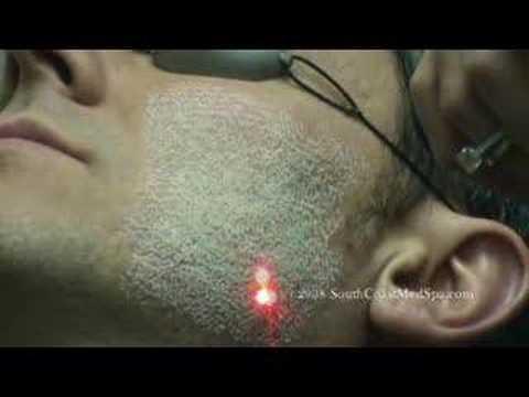 Laser-Skin-Resurfacing-for-Acne-Scar-Removal