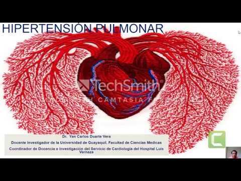 La variación de la presión arterial durante el ejercicio