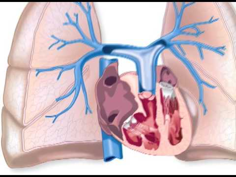 Hypertension problèmes potentiels