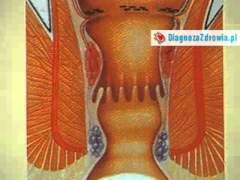 Złagodzić objawy hemoroidów w czasie ciąży