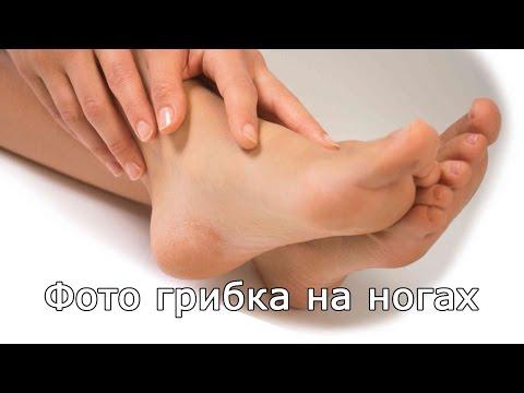 Den einwachsenden Nagel zu heilen