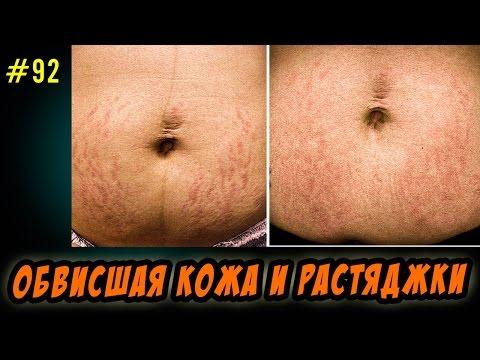 обвисшая кожа после похудения,стрии или растяжки - чего бояться,а  чего нет