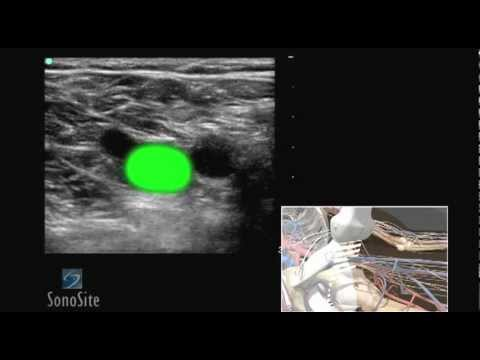 Лікування warikosu vom Laser in chmelnizkomu