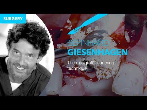 Live-surgery by Dr. Bernd Giesenhagen: The maxgraft® bonering technique