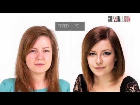 Wypadanie włosów priparaty