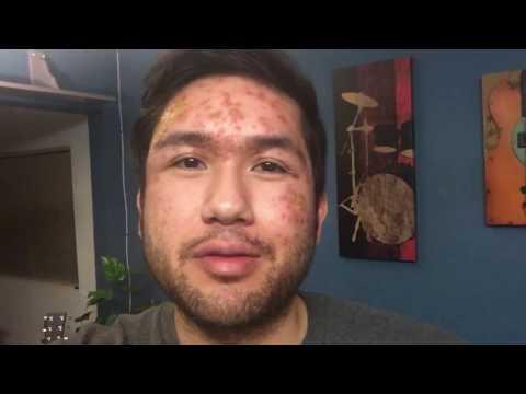 Risposte di cura di eczema di monetovidny