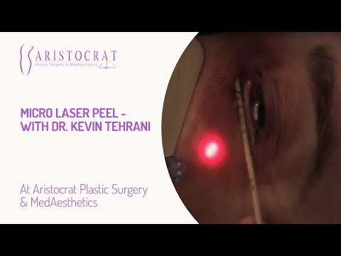 Micro Laser Peel- with Dr. Kevin Tehrani