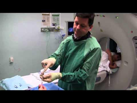 Trattamento dellosteoartrosi in piccole articolazioni ferma