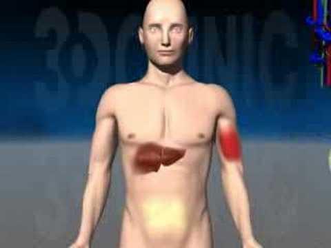 Piede diabetico Privolnaya