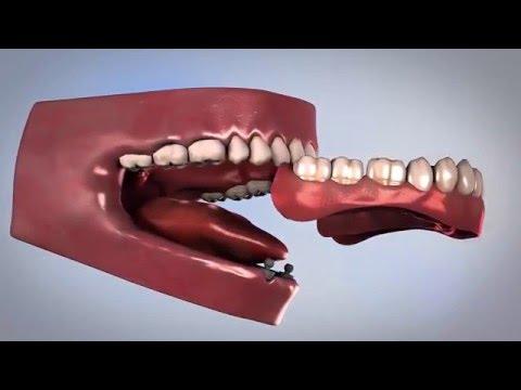 Имплантация зубов – информация для пациента  #CORTEX