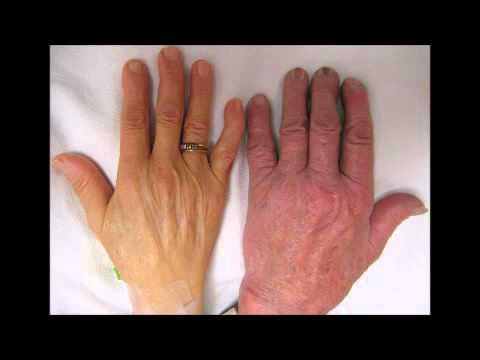 Coxartroza posttraumatică a tratamentului articulației șoldului