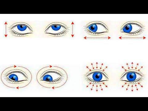 Лазерная коррекция зрения миопия видео