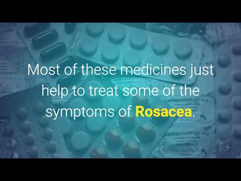 3 Effective Alternative Treatments For Rosacea - Rosacea Free Forever Review