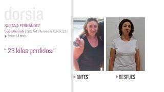 Balón Gastrico - Testimonio Susana Fernández - Clínica Dorsia Cáceres