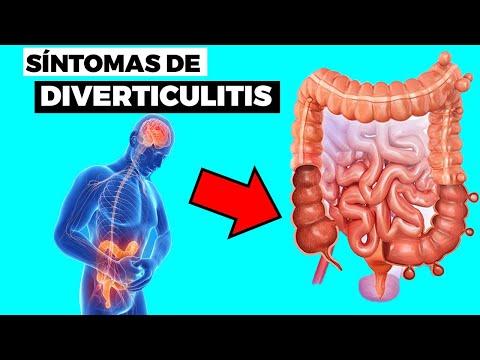 Los Síntomas De La Diverticulitis y Cómo Afecta a Tu Cuerpo