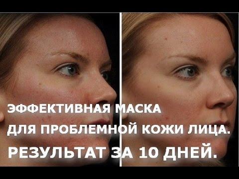 Лазерные процедуры для лица минусы