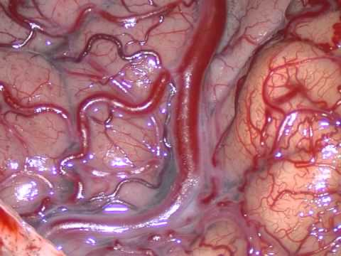 Mixed Endoscopic And Surgical Management Of The Cavernous AVF.