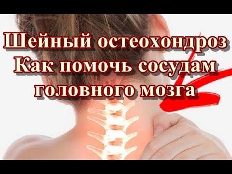 Шейный остеохондроз - Как помочь сосудам головного мозга