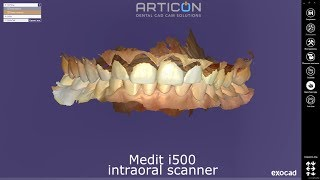 Exocad + Medit i500 intraoral scanner: single crown case