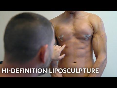 Hi-Def 4D Liposculpture