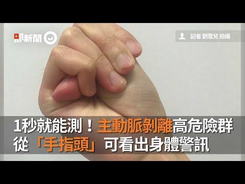 用手指頭測自己是不是主動脈剝離高危險群