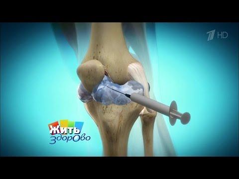 Чем устранить боль в суставах рук и ног