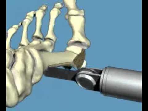 Szpotawe kolana koślawe i instalacja Podsumowanie