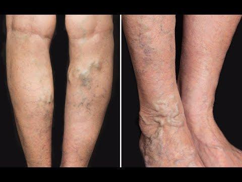 Boala articulară a piciorului