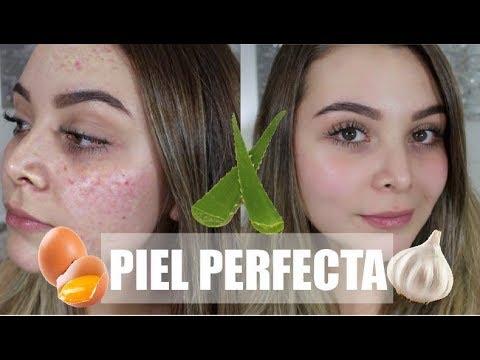 Remedios Naturales para una Piel Perfecta SIN ACNE! - Maqui015 ♥