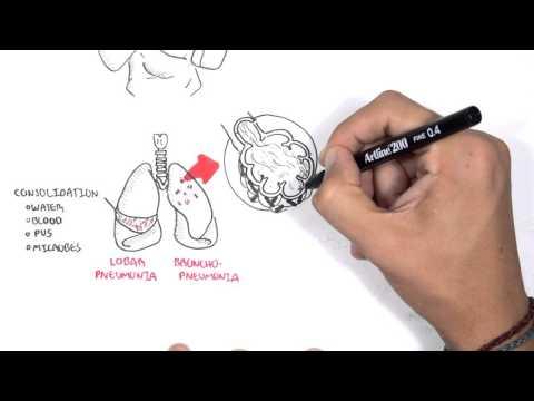 Zapalenie płuc - ogólny zarys