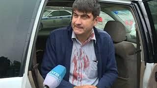 Авария с участием четырех авто произошла на улице Всеволода Сибирцева