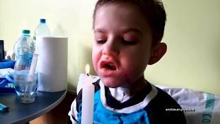 Granulat do udrażniania rur wypalił chłopcu przełyk (UWAGA! TVN)