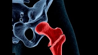 Treating Osteoporosis or Low Bone Density