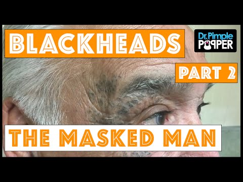 Return of The Masked Man: Blackhead Extractions! | Session 3, Part 2